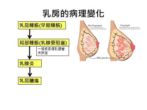 乳房病理變化.png