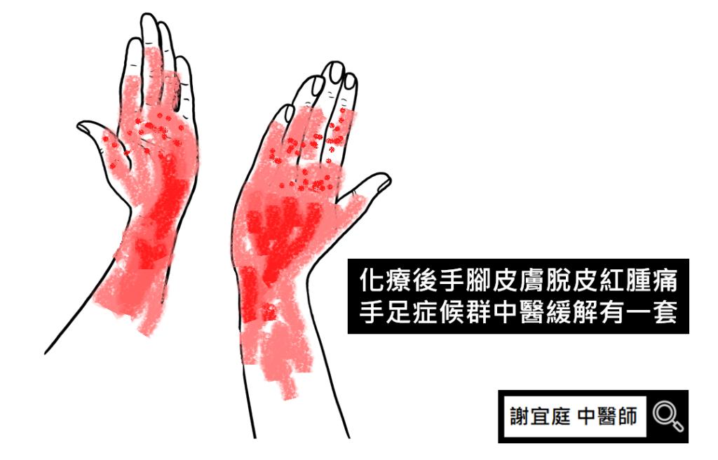 手足症候群 中醫 乳癌化療副作用 中醫婦科 謝宜庭